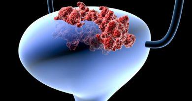 Mesane Kanseri Riski ve Öneriler